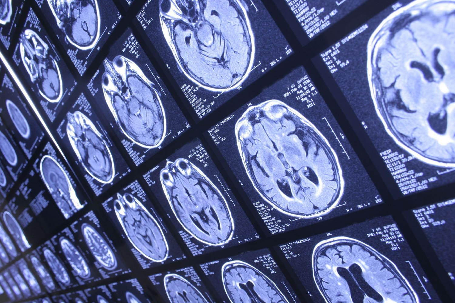 Brain activity scan in medical imaging